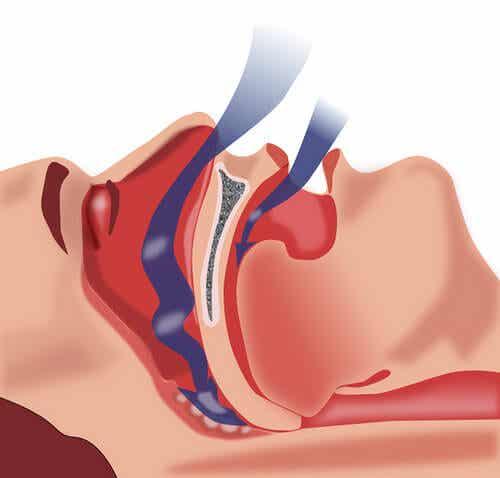 수면성 무호흡증 치료하기