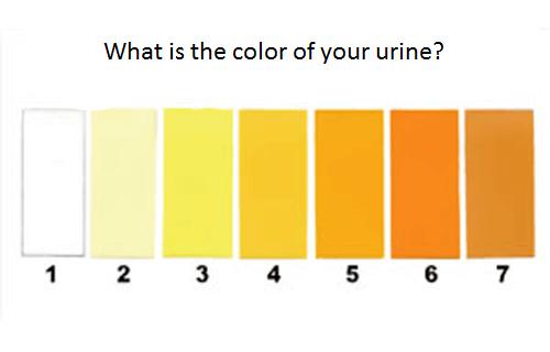 8가지 소변의 색