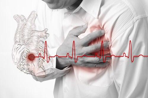심장마비 전조 증상