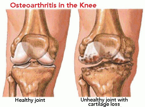 knee-joints