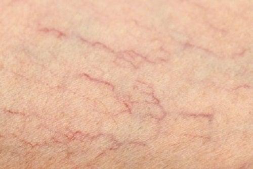 다리의 거미 혈관 치료법