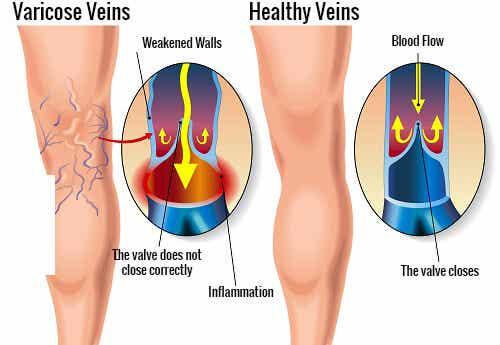 정맥류 개선에 도움이 되는 운동