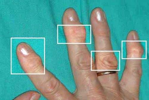 관절염 완화에 좋은 천연 치료법