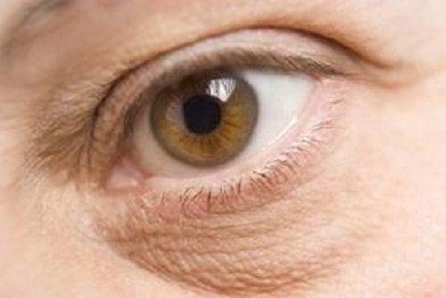 눈 밑의 부기에 좋은 천연 치료법