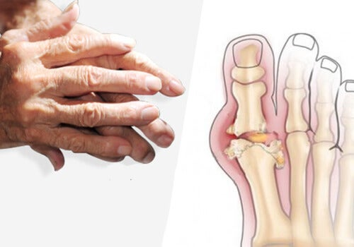 관절염 개선과 치료를 위한 상식