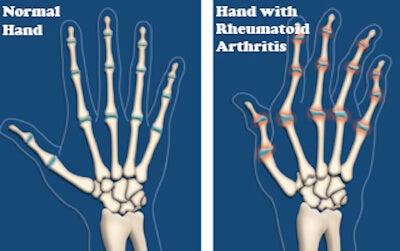 관절염 개선과 연골