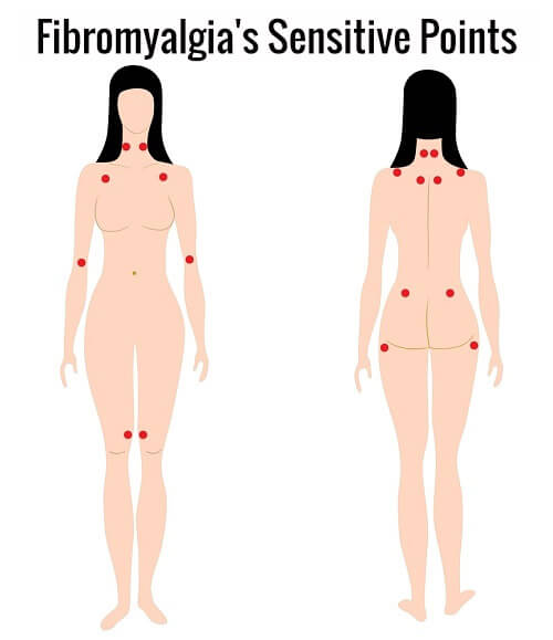 fibromyalgias-sensitive-points