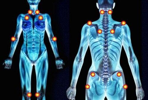 1-fibromyalgia-pain
