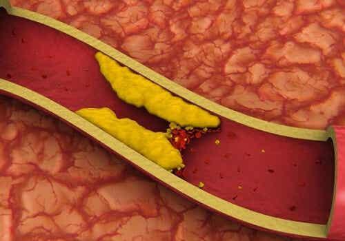 고콜레스테롤을 조절하는 방법