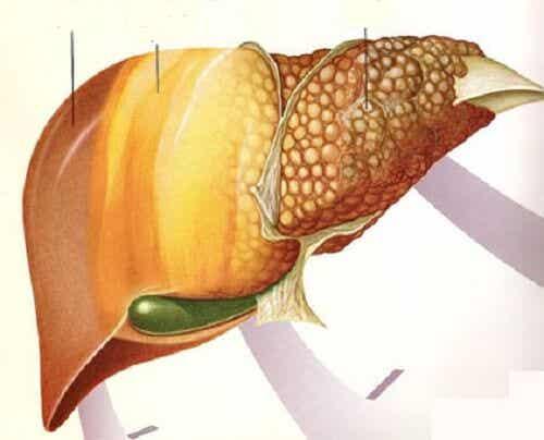 지방간에 좋은 과일