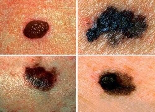 피부암을 발견하는 방법