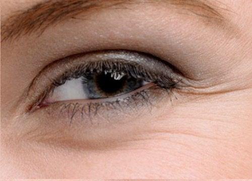 아름다운 눈을 위한 홈메이드 치료법