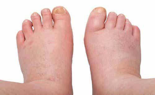 붓는 발, 발목, 다리: 하체 부종 치료법 6가지
