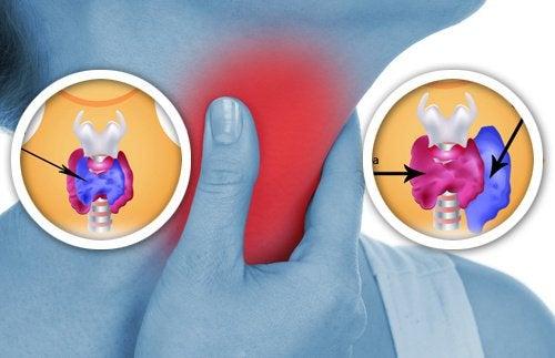 갑상선에 영향을 미칠 수 있는 8가지 생활용품