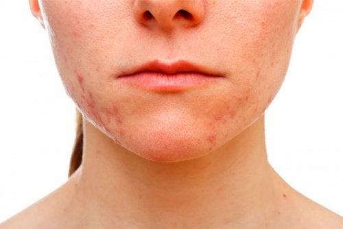 2-acne