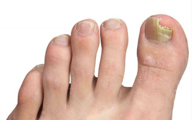 조갑진균증은 무엇일까? 손발톱무좀