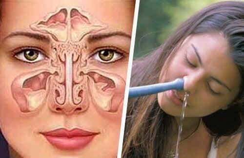 축농증을 치료하는 간단하고 자연적인 방법