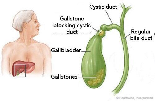 Gallbladder-stones-copy