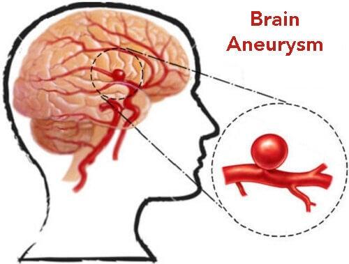 동맥류의 진단 및 예방법