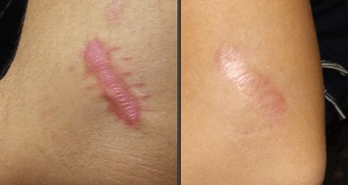 remove-scars