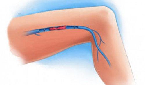 다리 혈전의 증상