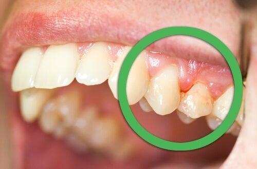 치은염의 천연 치료법