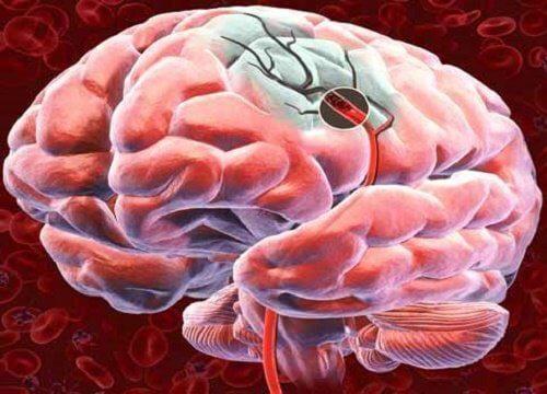 뇌 혈류를 증가시키는 5가지 방법