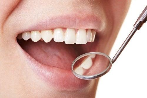 Dental-plaque-500x334