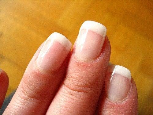 변색한 손톱