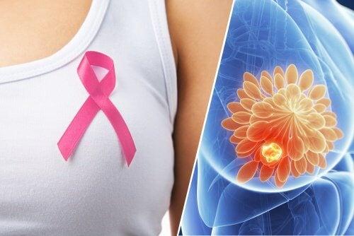 유방암의 10가지 징후