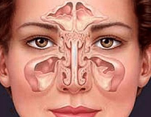 sinusitis-500x388