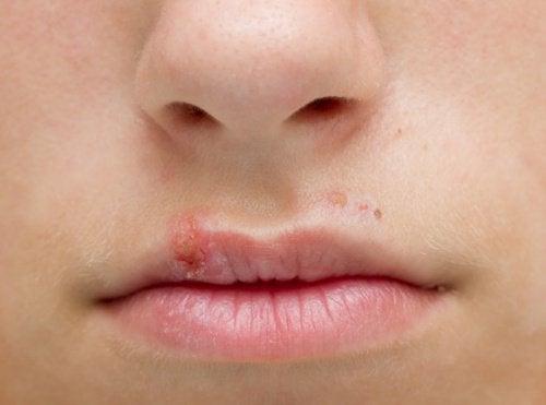 입술 물집 치료법