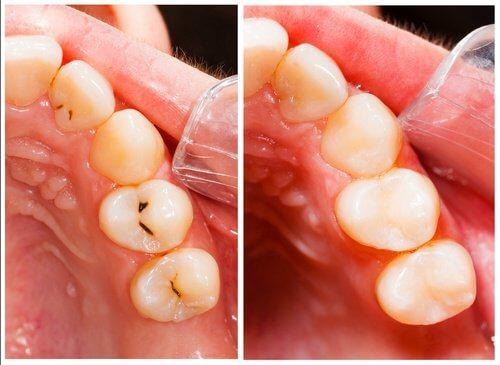 1-cavities