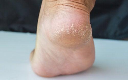 1-cracked-heel