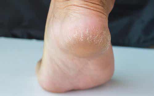 갈라진 발뒤꿈치를 완화하는 치료제