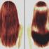 1-healthy-scalp