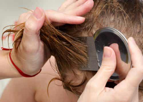 머릿니와 서캐를 빠르게 없애는 자연 요법 7가지