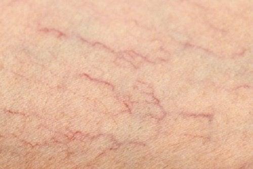1-spider-veins