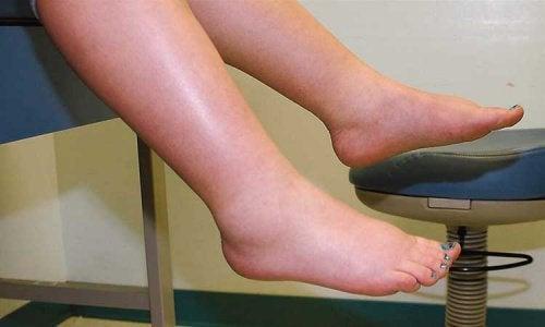 다리의 체액 저류를 없애는 방법