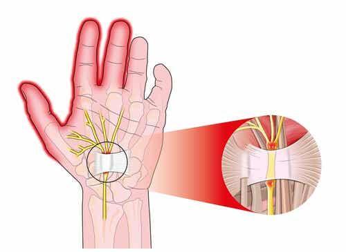 손목 터널 증후군 치료하기