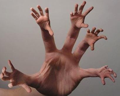 외계인 손 증후군