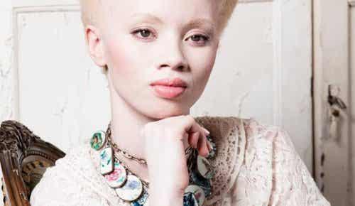 백색증, 모델 Thando Hopa의 이야기