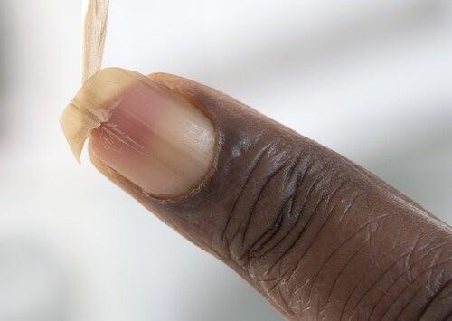 brittle-nail