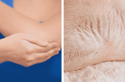 건조한 팔꿈치와 발을 관리하는 방법