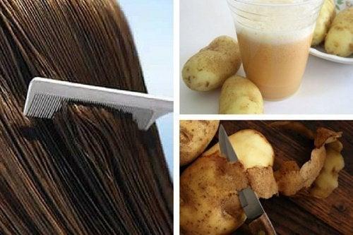 1-감자와 머리카락