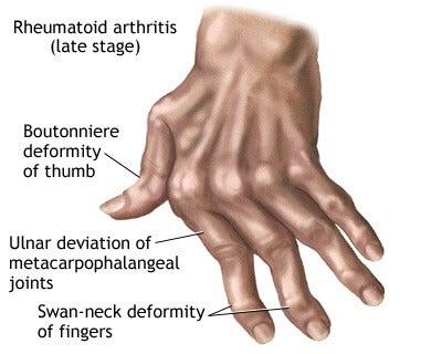 손 관절염에 좋은 자연 요법 7가지