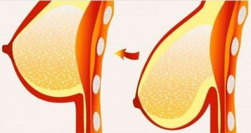 처진 가슴을 올려주는 8가지 비법