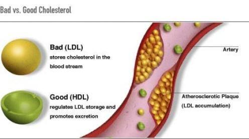 가지 물은 콜레스테롤을 낮출 수 있다
