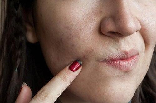 피부 건강을 해치는 7가지