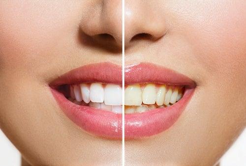 치통을 완화하는 천연 특효약 10가지